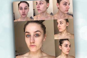 Przez rok myła twarz TYLKO płynem micelarnym i pozbyła się trądziku. Pytamy dermatologa o ten sposób