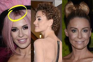 Wybraliśmy dla was najgorsze fryzury z polskich salonów. Kogo poniosła fantazja, a komu najzwyczajniej nie chciało się uczesać? Zobaczcie i pamiętajcie, aby takich eksperymentów na głowie unikać!