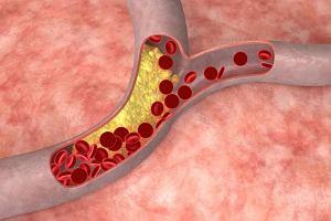 Zator t�tnicy krezkowej