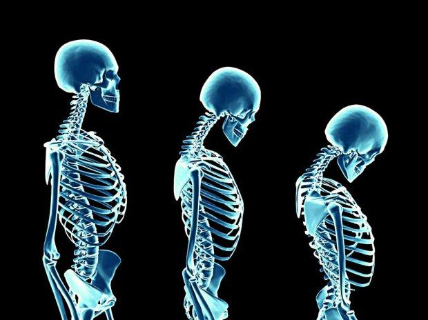 Osteoporoza. Czym gro�� kruche ko�ci