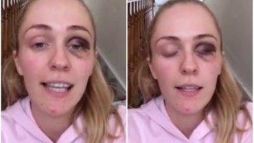 Po trwających ponad rok aktach przemocy Emma zdecydowała się odejść od partnera i dodać odwagi kobietom w podobnej sytuacji