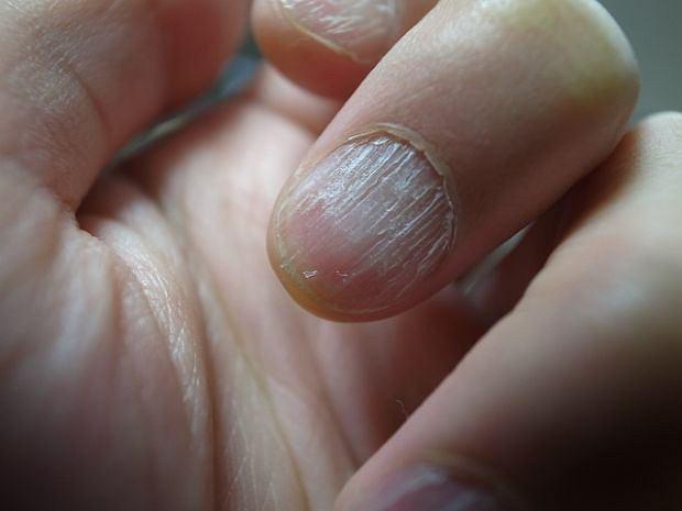 Białe plamki na paznokciach to jeden z tych objawów, którymi przejmujemy się czasem niepotrzebnie, ale bywa też tak, że lekceważymy chorobę, samodzielnie stawiając diagnozę. Nie pomyl typowych białych plamek z poważniejszymi problemami paznokci. Jeśli zmiany są pionowe, powierzchnia łuszczy się, a problem nasila, czas na wizytę u dermatologa