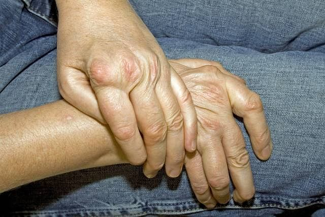 Reumatoidalne zapalenie stawów jest chorobą autoimmunologiczną, a przyczyny jej występowania nie są znane