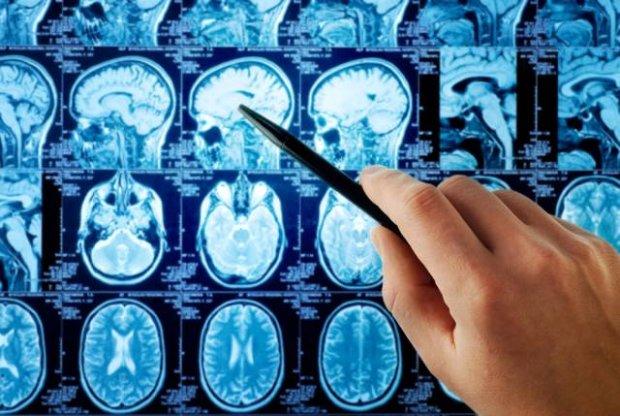 Infekcja groźna także dla mózgu