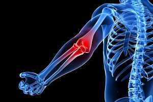Czy bóle stawów można usunąć, stosując masaż?