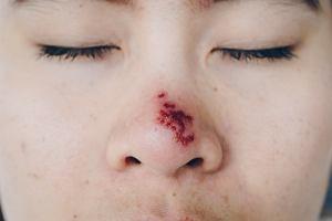 Opryszczka na nosie - objawy, diagnoza, leczenie