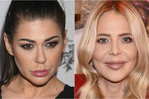 Powiększenie ust to jeden z najbardziej rzucających się w oczy zabiegów estetycznych. Potrafi zmienić całą twarz. Niekiedy na lepsze, czasami, niestety na gorsze. Zobaczcie, jak zmieniły się twarze gwiazd, kiedy powiększyły sobie usta.