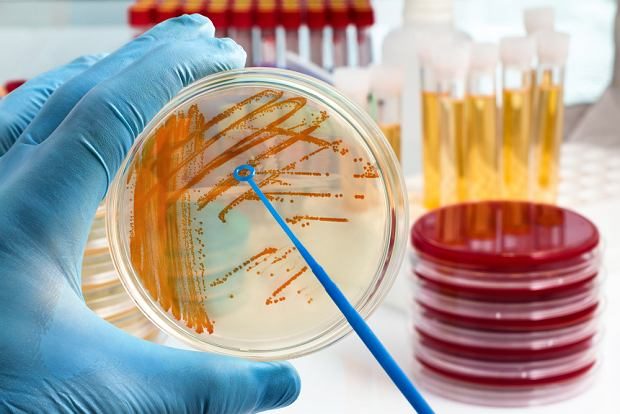 Bakterie w moczu - jak rozumieć wyniki?