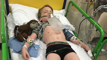 Sześcioletni Oliver Hall zmarł na inwazyjną chorobę meningokokową w niecałą dobę