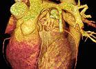 Epidemia gasn�cych serc