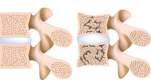 Zmiany osteoporotyczne w lędźwiowym odcinku kręgosłupa