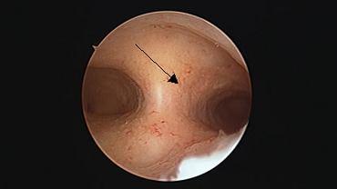 Nieprawidłowa jama macicy w histeroskopii: wada macicy w postaci przegrody. Przegroda widoczna na środku