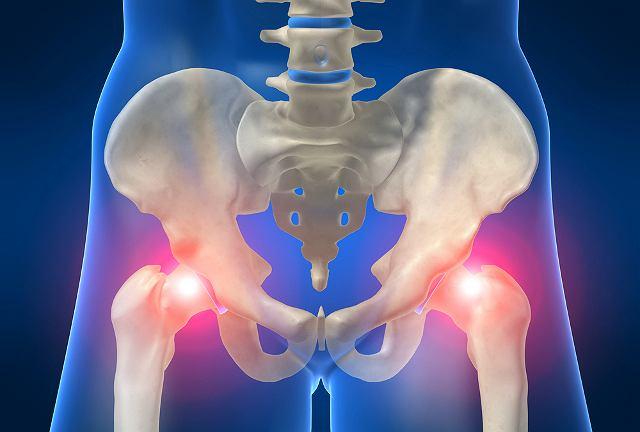 Zwichnięcie biodra może także skutkować uszkodzeniem nerwów i brakiem czucia w nodze