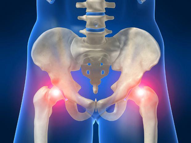 Zwichni�cie biodra mo�e tak�e skutkowa� uszkodzeniem nerw�w i brakiem czucia w nodze