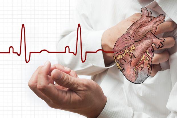 Zawał mięśnia sercowego