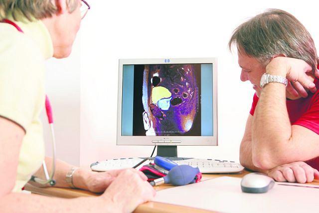 Rak prostaty to trzeci co do częstości występowania nowotwór złośliwy w Polsce