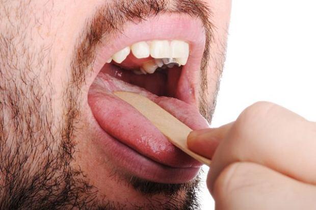 Leczenie wirusowej infekcji gard�a polega g��wnie na �agodzeniu objaw�w.