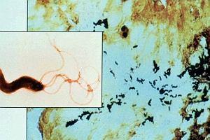 Wrzody, czyli problem z bakteri�