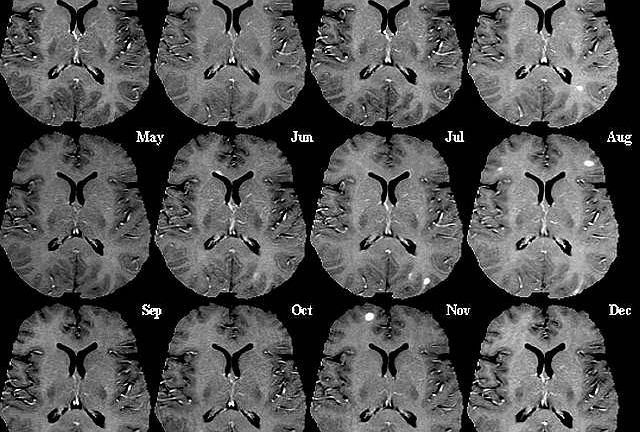 Obraz mózgu osoby dotkniętej stwardnieniem rozsianym