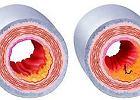 Komórki macierzyste ratuj� serce po zawale