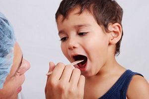 Afty i pleśniawki: jak się ich pozbyć? Przyczyny, objawy i leczenie pleśniawek i aft