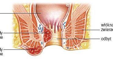Hemoroidy zewnętrzne i wewnętrzne. Powiększenie splotu hemoroidowego może spowodować tworzenie się wewnętrznych guzów krwawnicowych lub ich wypadnięcie w pobliżu ujścia odbytu