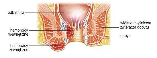 Hemoroidy zewn�trzne i wewn�trzne. Powi�kszenie splotu hemoroidowego mo�e spowodowa� tworzenie si� wewn�trznych guz�w krwawnicowych lub ich wypadni�cie w pobli�u uj�cia odbytu
