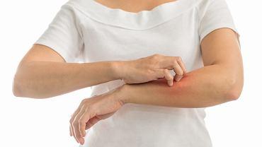 Swędzenie skóry (świąd skóry) może mieć wiele przyczyn. Może to być efekt ukąszenia przez owada albo jeden z objawów alergii