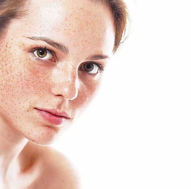 Stop przebarwieniom! Jak pielęgnować skórę