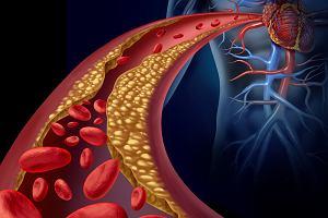 Czy statyny to skuteczna i bezpieczna metoda obniżania zbyt wysokiego poziomu cholesterolu?