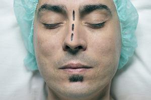 Krzywa przegroda nosowa - przyczyny, objawy, leczenie
