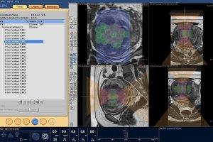 Sonalleve MR-HIFU - innowacyjna metoda leczenia mi�niak�w macicy