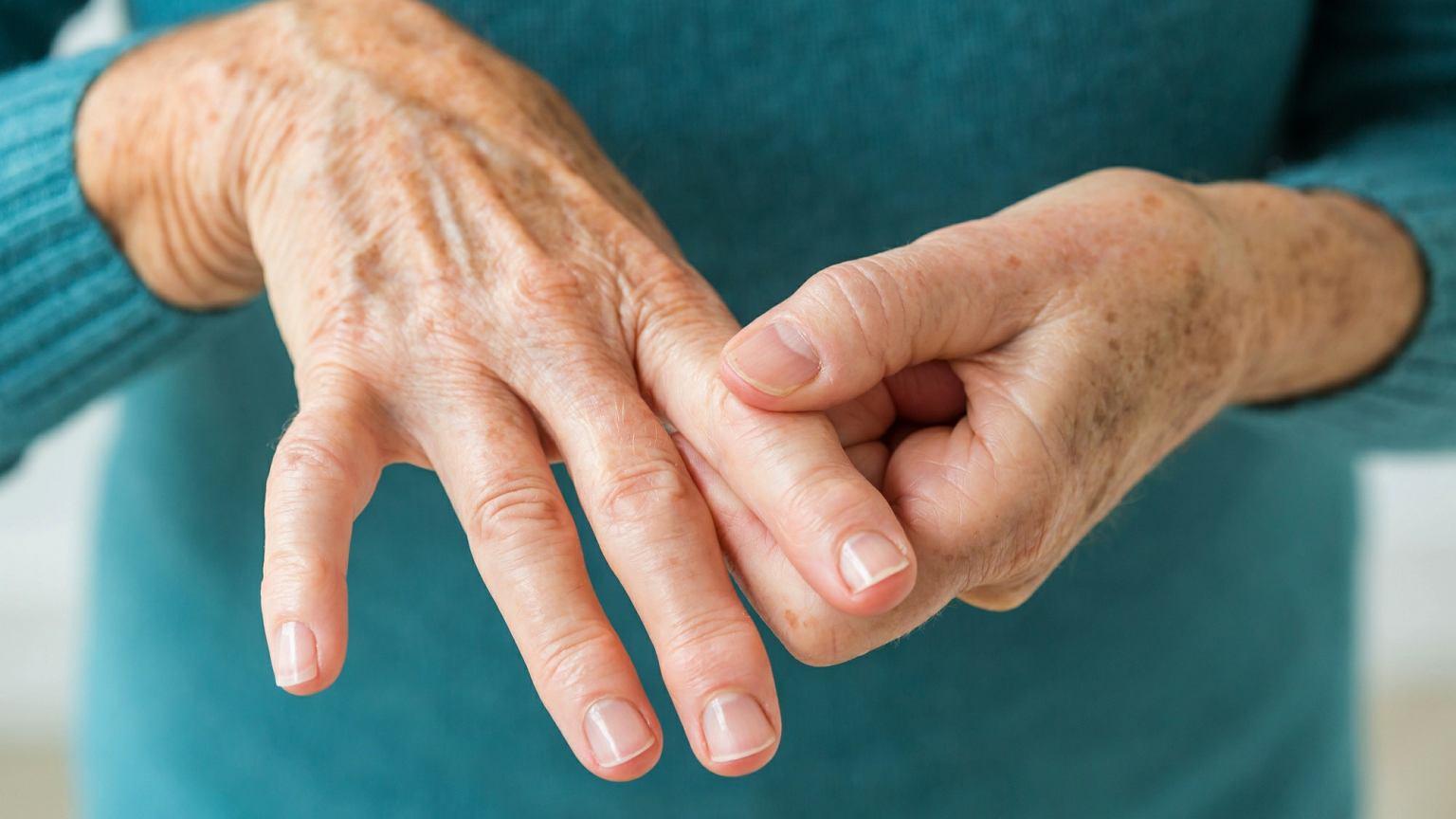 Полиартрит кистей рук и пальцев: лечение, симптомы 46