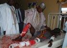 Bestialski zamach w Nigerii. Zaatakowa�y dwie nastolatki