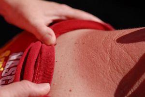 ABCDE czerniaka: 5 cech, które pozwolą go odróżnić od niegroźnej zmiany skórnej