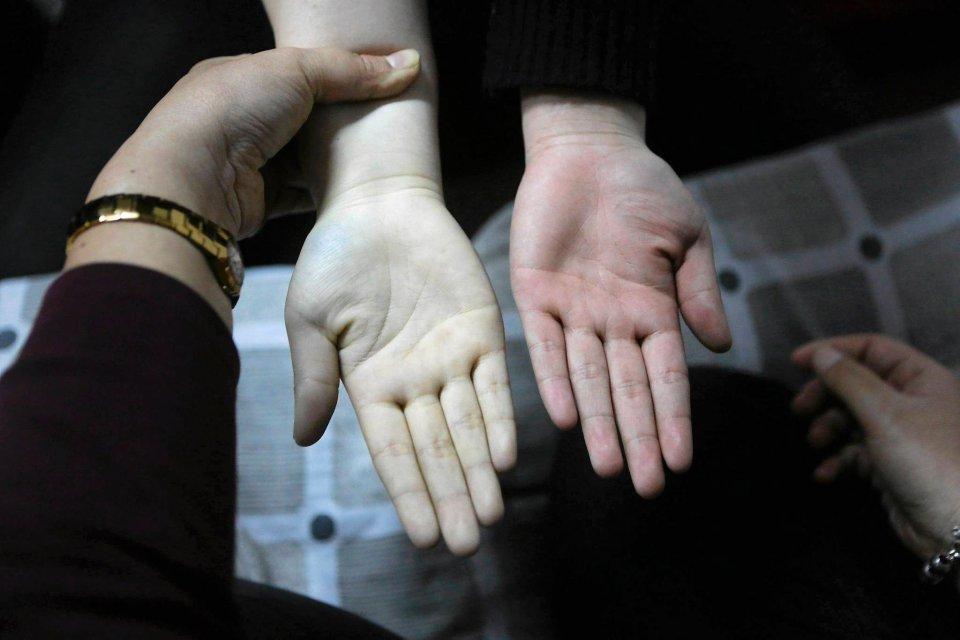 Zadanie: jak powstrzymać dopływ krwi do dłoni.