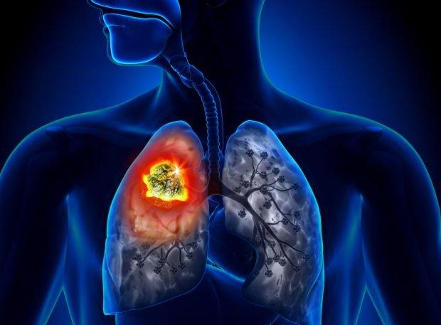 Nowoczesne filtry w papierosach sprawiły, że przybyło chorych z rakiem płuca znacznie trudniejszym do wykrycia