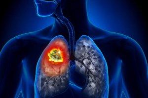 Rak płuca: jak się badać, by mieć szansę na ratunek?