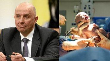 Wiceminister zdrowia: Znieczulenie przy porodzie nie powinno by� powszechne i na �yczenie