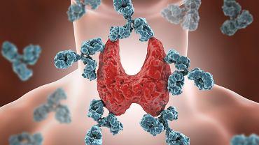 Autoimmunologiczne zapalenie tarczycy to inaczej choroba Hashimoto.