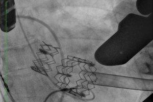 �wiatowy prze�om! Kardiolodzy z Warszawy wszczepili pacjentowi pioniersk� metod� dwie zastawki serca