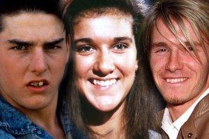 Tom Cruise wyprostowa� z�by, to wiedz� wszyscy. A kto jeszcze poprawia� sobie u�miech?