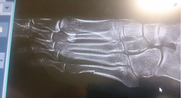 """Pacjent przychodzi na komisj� w ZUS-ie ze z�amanym palcem. Lekarz: """"Skoro Kowalczyk mo�e biega� ze z�aman� nog�..."""""""
