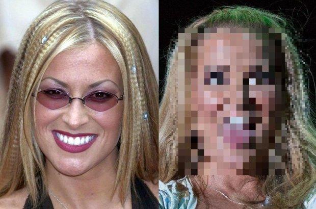 """Anastacia, znana z przeboju """"Outta Love"""", wyznała niedawno, że """"oszalała na punkcie botoksu"""". Gwiazda przyznała, że musiała z nim skończyć. Zobaczcie, jak nadużywanie botoksu zmieniło jej twarz."""