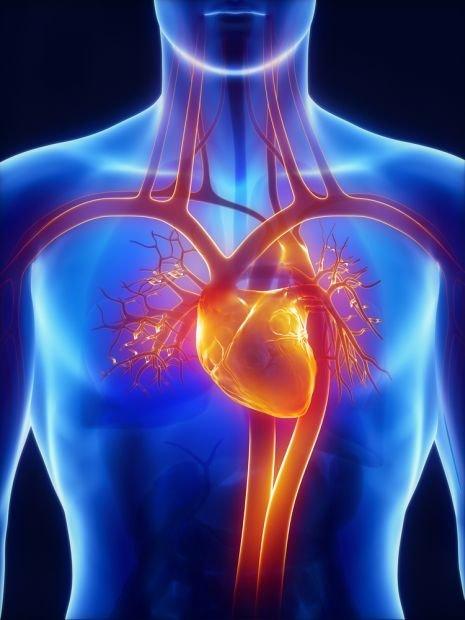 Wstrząs kardiogenny