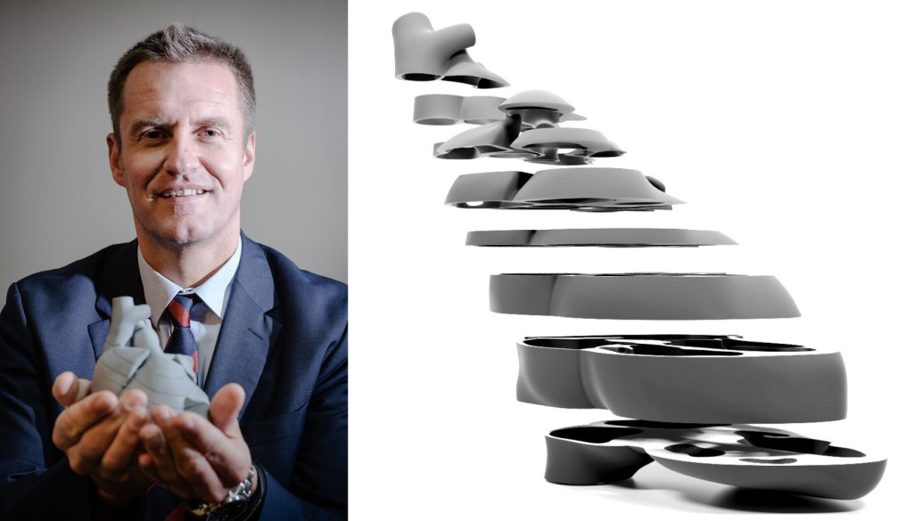 Dr Marcin Wiecheć. Obok model serca - mniej atrakcyjny niż standardowe wyobrażenie, ale z punktu widzenia medycyny zdecydowanie bardziej przydatny (fot. materiały prasowe)