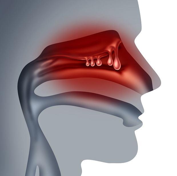 Polipy w nosie - przyczyny, objawy i leczenie