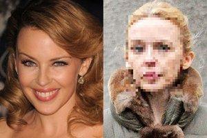 W 2010 roku Kylie Minogue obiecywa�a, �e zerwie z botoksem. Na faktyczn� rezygnacj� przysz�o nam jednak troch� poczeka�. Niedawno paparazzi zrobili jej zdj�cia, gdy niemal bez makija�u sz�a po ulicach Londynu. Wystarczy jedno spojrzenie, by sprawdzi�, czy dotrzyma�a s�owa.