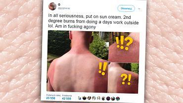 Greg z Edynburga jest dowodem na to, że nie trzeba jechać w tropiki i smażyć się na słońcu, żeby skończyć z poparzeniami II stopnia