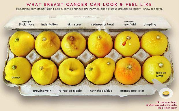 Jak może wyglądać i być odczuwany rak piersi? Rozpoznajesz niektóre objawy? Nie panikuj, niektóre zmiany mogą być niegroźne. Ale jeśli się utrzymują, bądź mądra i pokaż je lekarzowi.  Od lewej, pierwszy rząd: piersi są nabrzmiałe, pojawiło się w piersi wklęśnięcie, boli skóra piersi, skóra jest zaczerwieniona lub gorąca, pojawiła się dziwna wydzielina, pierś ma widoczne dołeczki Od lewej, dolny rząd: guz, nabrzmiałe żyły, wklęśnięcie brodawki, nowy kształt lub rozmiar, 'skórka pomarańczowa', ukryty w piersi guzek (zazwyczaj twardy jak pestka cytryny i nie przesuwający się).